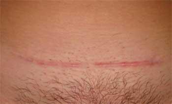 Как сделать чтобы шрамы не заживали
